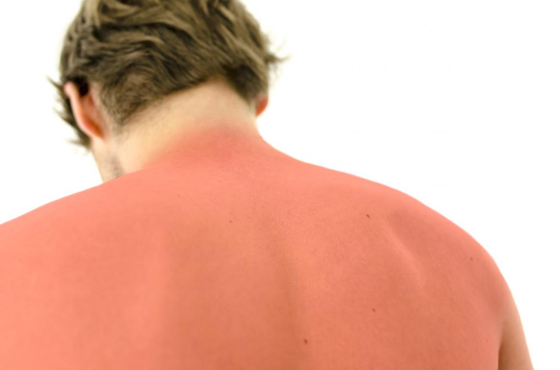 Vitamin D may help to treat sunburn, study suggests